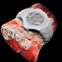 Effettuata la prima radiografia 3D a colori di un essere umano