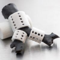 Stecche tracheali stampate in 3D utilizzate in chirurgia pediatrica
