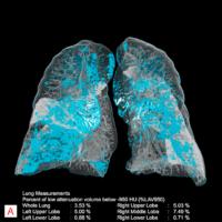Il software CT toracico Companion AI-Rad basato su AI di Siemens Healthineers registrato per l'uso in Europa
