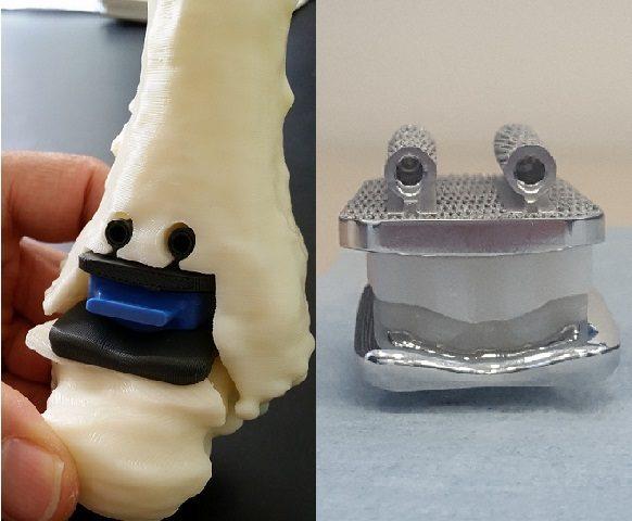 Al Rizzoli di Bologna ricostruita intera caviglia con protesi su misura stampata in 3D