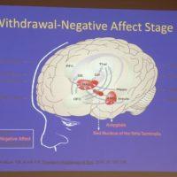 """ASP Ragusa avvia la terapia contro le dipendenze attraverso la """"stimolazione magnetica transcranica"""""""