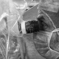 Reimpiantato un dito a una bimba di 18 mesi all'ASST Gaetano Pini-CTO di Milano