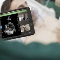 Philips riceve l'autorizzazione FDA per l'uso del suo portafoglio di ultrasuoni per la gestione delle complicanze cardiache e polmonari correlate a COVID-19