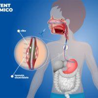 """Uno stent """"dinamico"""" per curare le lesioni esofagee"""