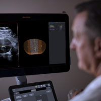 Philips integra l'ecografia 3D con un software innovativo per la sorveglianza degli aneurismi dell'aorta addominale