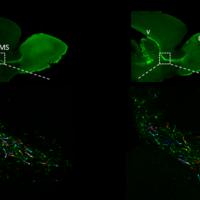 La maturazione precoce dei neuroni alla base delle malattie del neurosviluppo