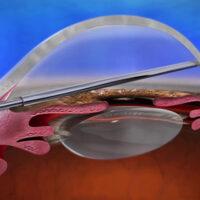 Glaucoma: al Miulli introdotti due device di altissima precisione