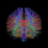 INFN e Fondazione Santa Lucia IRCCS insieme per applicare alle neuroscienze la fisica medica