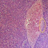 Covid-19: nuovo studio dimostra come il virus attacca il fegato