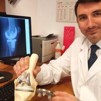 Policlinico Gemelli: impiantata una nuova protesi del ginocchio in titanio prodotta con una stampante 3D