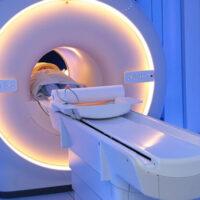 Un metodo innovativo aumenta la precisione degli interventi chirurgici per i tumori cerebrali