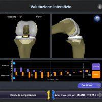 Ospedale CTO di Torino: eseguito con robot un impianto di protesi di ginocchio anatomica con risparmio dei crociati