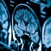 L'intelligenza artificiale per la diagnosi dei tumori testa-collo