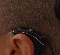 """A Sassari impiantato il primo """"orecchio bionico"""""""
