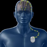 Da Medtronic un nuovo dispositivo per la gestione del Parkinson