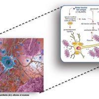 """Rame e Alzheimer: un nuovo studio suggella lo squilibrio del rame """"cattivo"""" nell'organismo come fattore di rischio della malattia"""