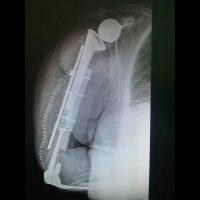 Ospedale di Perugia: eseguito primo intervento chirurgico su frattura interprotesica