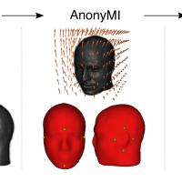 AnonyMI: un nuovo metodo open source per de-identificare immagini di risonanza magnetica