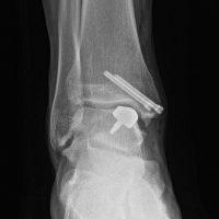 Al Rizzoli un nuovo trattamento chirurgico personalizzato delle lesioni della cartilagine della caviglia